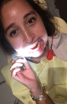 Killer Fashion PD Dental Teeth Whitening Review